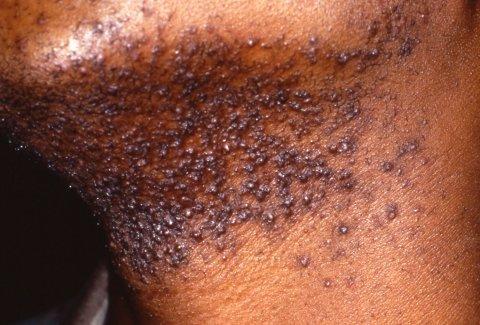 ingrown hair barbae