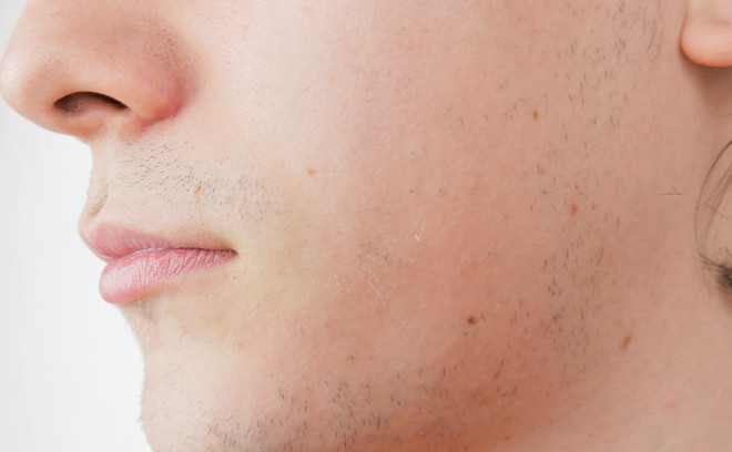 These are the top skin care tips for guys